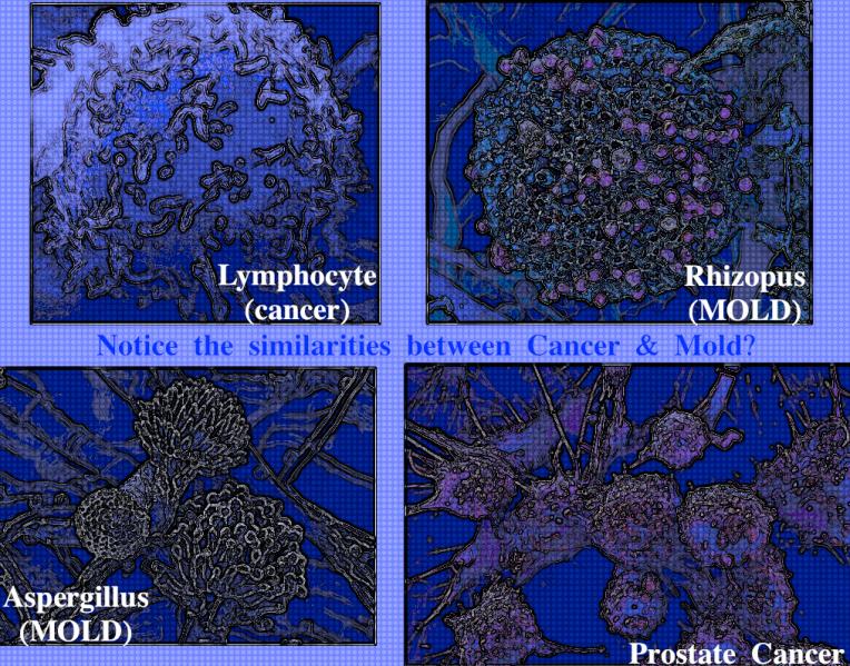 FotoFlexer_Photomold cancer
